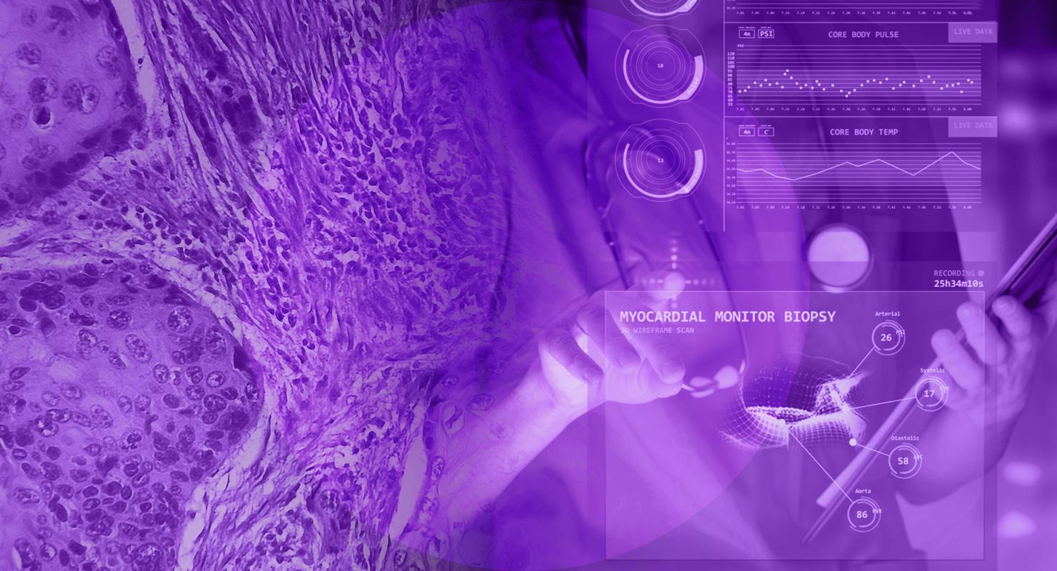 Digital Pathology: AI for biopsy assessment