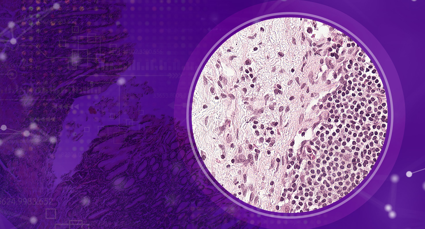 Digital pathology – AI for biopsy assessment